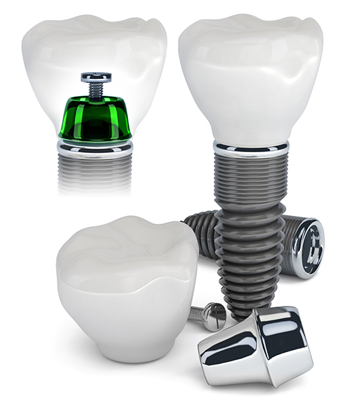 dental implants in south milwaukee